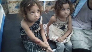 صورة الحديدة.. استشهاد وإصابة 4 أطفال إثر قصف المليشيات الحوثية مدينة حَيْس