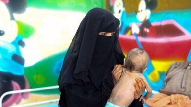 صورة عبث مليشيا الحوثي بالقطاع الصحي يرفع من معدلات سوء تغذية الأطفال