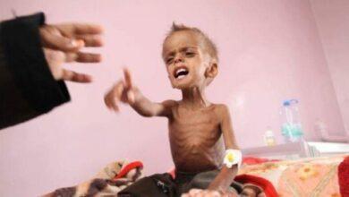 صورة وكالة دولية: اليمن المنسي يهوي إلى قاع المجاعة