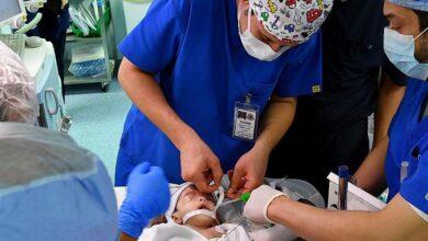 صورة بدء عملية فصل التوأم السيامي اليمني في الرياض