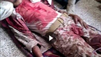 صورة قتلى وجرحى في انفجار عنيف هز معسكر تابع لمليشيا الإخوان بمودية