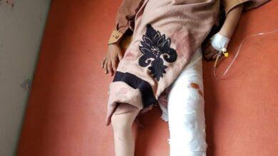 صورة عاجل.. #مليشيات الحوثي تقصف حي المليحا في #تعز اليمنية وسقوط جرحى