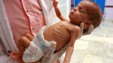 صورة الأمم المتحدة: 7.6 مليون شخص في اليمن بحاجة إلى خدمات لعلاج سوء التغذية